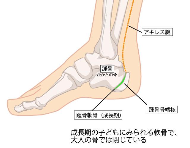 踵骨骨端核のイラスト